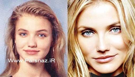 بازیگران معروف دنیا که با عمل جراحی خود را زیبا ساخته اند