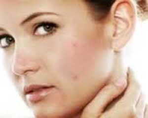 مشکلات پوستی, درمان جوش