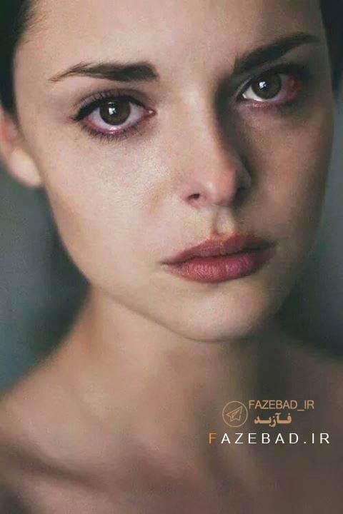 عکس گریه دختر - عکس قرمزشدن چشم دختر موقع گریه - گریه کردن دختر - گریه دختر ناراحت - پروفایل گریه دخترونه
