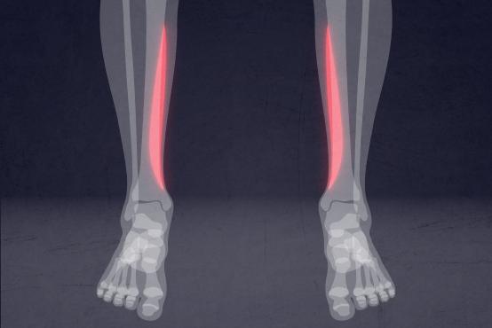 ورزشهای مناسب برای درمان درد ساق پا