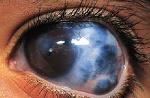 آب سیاه چشم، نوع مزمن زاویه باز