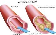 آترواسکلروز (تصلب شرایین) چیست ؟