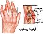 آرتریت روماتوئید چیست
