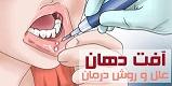 آفت دهان چیست ؟