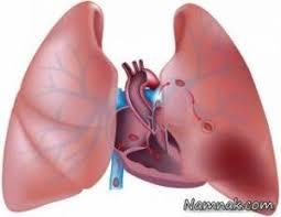 آمبولی ریه چیست ؟