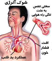 آنافیلاکسی (شوک آلرژیک)