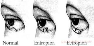 انتروپیون اختلال پلک