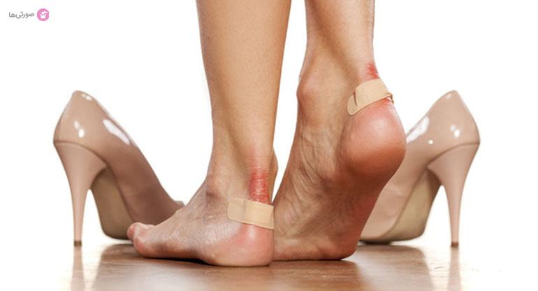 درمان تاول پا در اثر کفش