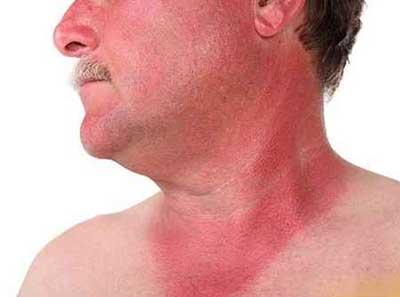 آفتاب سوختگی پوست جسم