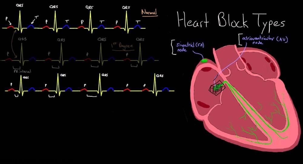 بلوک قلبی چیست ؟