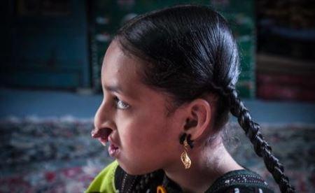 دختر سیستانی با چهره ای دردناک