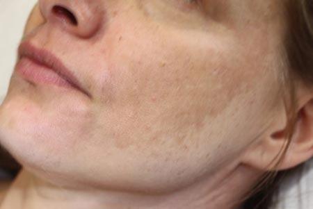 درمان لک های صورت,لک صورت,درمان لک صورت