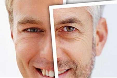 بیماری پیری زودرس پوست