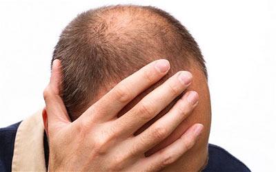 درمان قطعی ریزش مو,علل ریزش مو,درمان ریزش مو