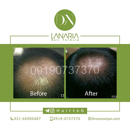 رشد مو,رشد سریع مو,داروی رشد سریع مو