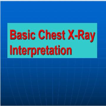 پاورپوينت با عنوان Basic Chest X-Ray Interpretation  به زبان انگلیسی