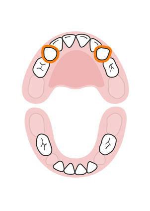 دندان های کودک