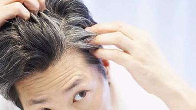 سفید شدن مو در نوجوانی نشانه چیست، سفید شدن مو