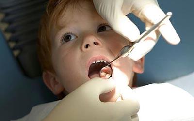 علل پوسیدگی دندان در کودکان