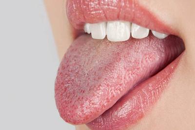 خشکی دهان و راههای پیشگیری، خشکی دهان نشانه چیست