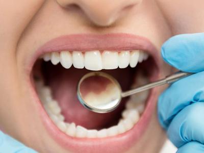 پلاک دندان ها، پلاک دندان چیست