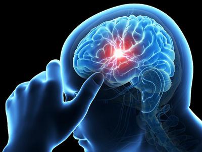 علایم سکته مغزی،علائم سکته مغزی