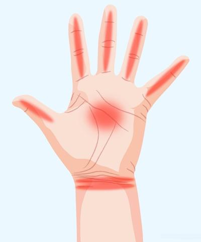 درد در دست، علایم بیماری در دست