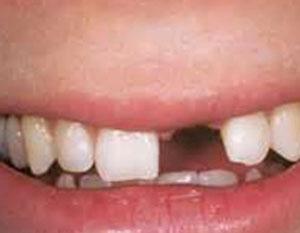 درمان بیدندانی, بریج چیست, کشیدن دندان