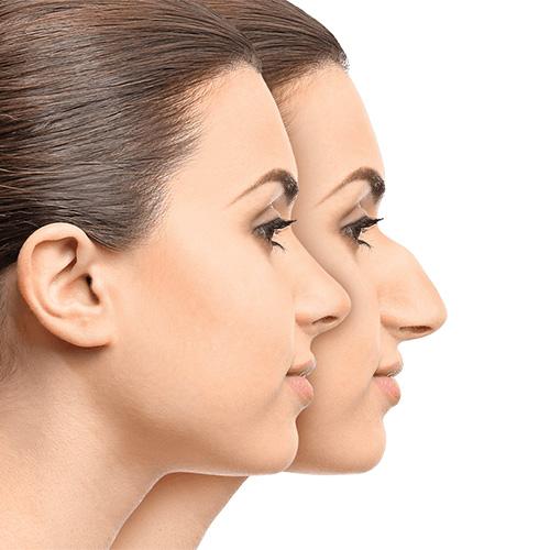 آنچه در مورد جراحی و عمل بینی باید بدانید