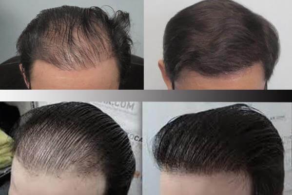 انواع روش های کاشت موی سر