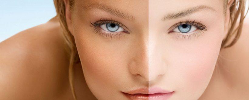 لیزر روشن کننده پوست