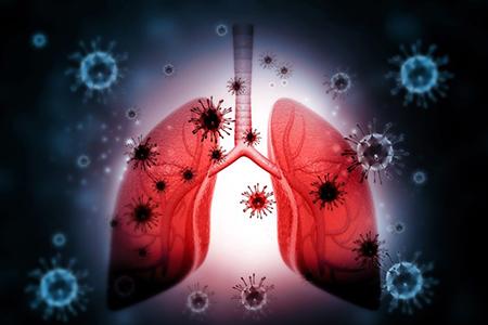 علایم عفونت ریه،عفونت ریه چیست