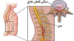اگر دچار تنگي کانال نخاع هستيد اين مطلب را بخوانيد / درمان تنگي کانال نخاع