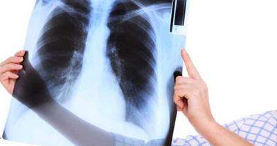 علایم عفونت ریه، نشانه های سرطان ریه