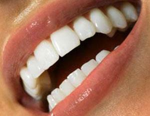 روش های سفید کردن دندان, سفیدی دندان ها