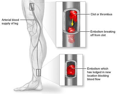 بیماری آمبولی شریانی؛ از علائم تا درمان