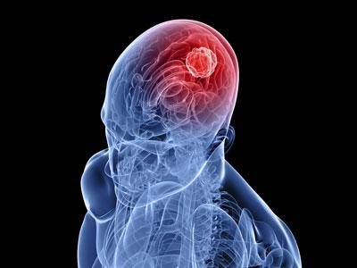 آنچه باید دربارۀ تومورهای مغزی بدانید؟