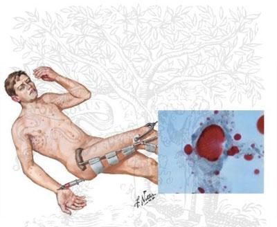 بیماری آمبولی چربی: علائم، درمان و پیشگیری