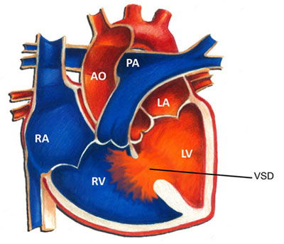 VSD چیست و چگونه درمان می شود؟