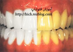 دانلود فیلم آموزش سفید کردن رنگ دندان در فتوشاپ