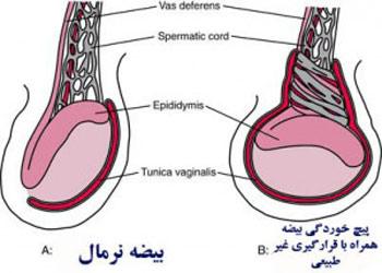 درمان درد بیضه, دانستنیهای جنسی, سرطان بیضه
