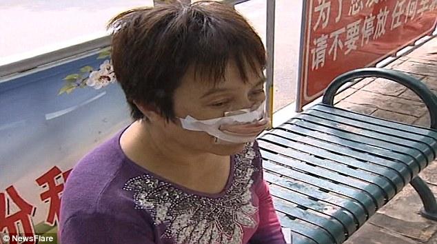 مردی دماغ همسرخود را بلعید!+تصاویر یک مرد چینی پس از اینکه همسرش تماس تلفنی وی را پاسخ نداد، بینی زن