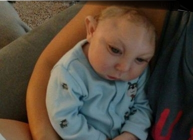 عکس های نوزاد یک ساله ی بدون جمجه