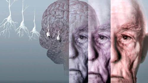از کجا بفهمیم داریم آلزایمر می گیریم؟