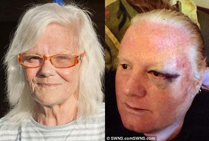 حمله وحشیانه به زوج سالخورده پس از آزادی از زندان/ پلیس در تعقیب اوباش فراری است