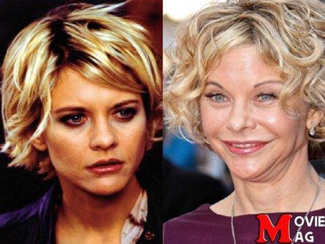 چهار  بازیگر زنی که جراحی زیبایی چهره شان را زشت کرده است + عکس