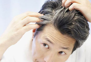 علت سفید شدن موها با افزایش سن چیست؟