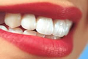 دستور العمل های خانگی برای سفیدی دندان!!