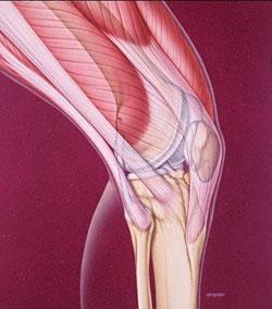 علت گرفتن عضلات چیست؟