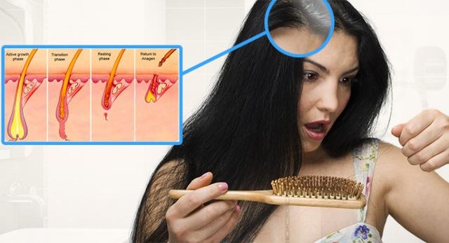 درمان ریزش مو ناشی از کم کاری تیروئید
